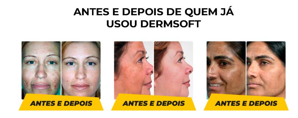 DermSoft Antes e depois 01